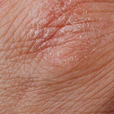 S.O.S droge huid!