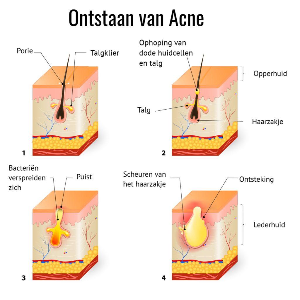 Het ontstaan van acne