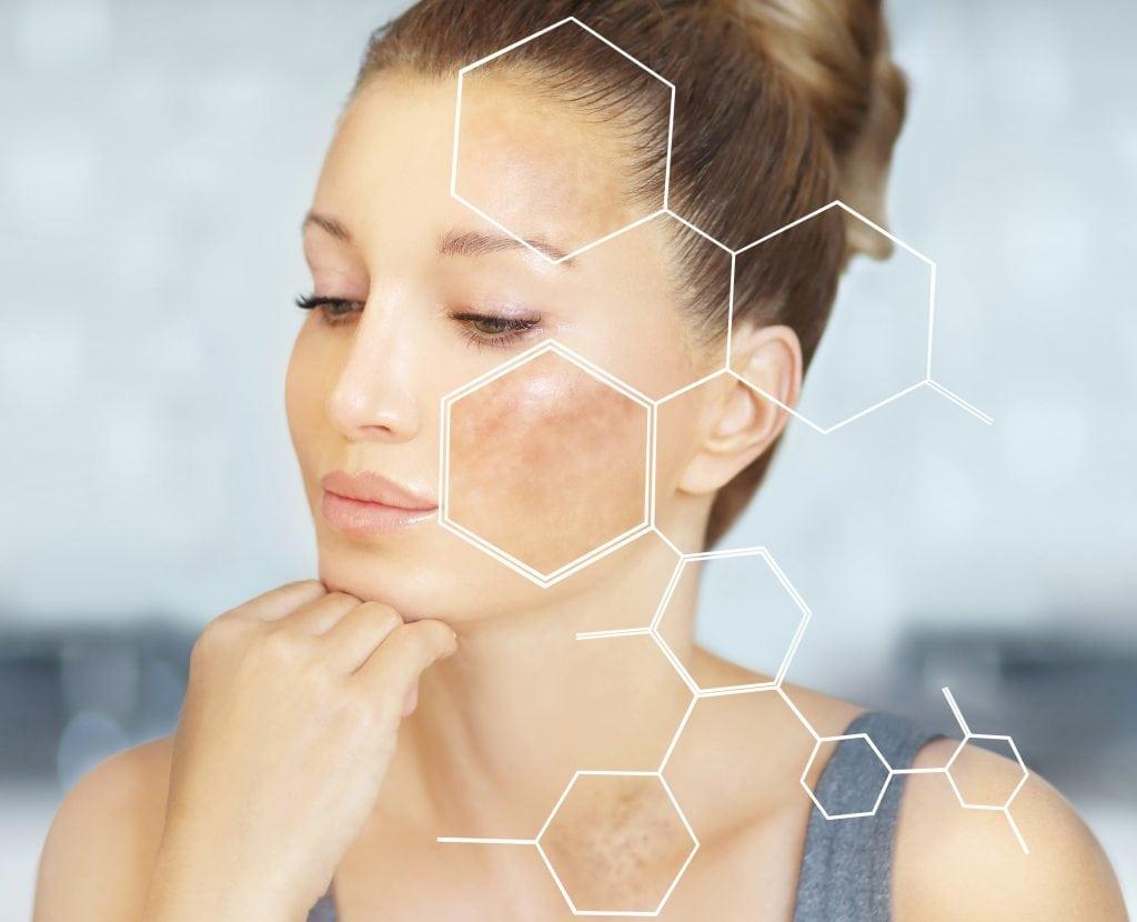 Hyperpigmentatie ontstaat vaak op zichtbare plaatsen als het gezicht, de hals en de handen.